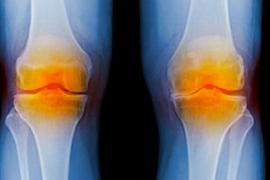 5-knee-replacement-facts.jpg